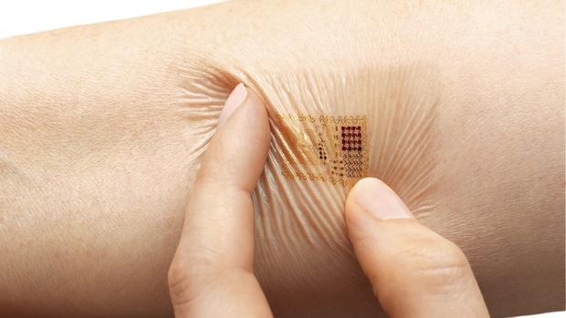 Esempio di Microchip sottocutaneo